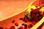 L'arnaque de l'industrie pharmaceutique : Le cholestérol est notre ennemi … imaginaire!